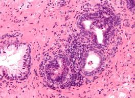 prostatitis asintomática crónica psa 3
