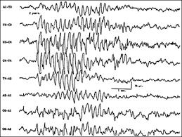 eeg-epilepsia