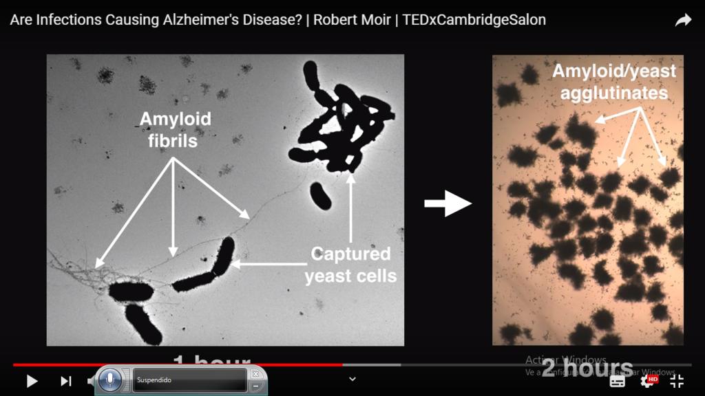 La imagen tiene un atributo ALT vacío; su nombre de archivo es germenes-en-neurodegenerativas-4-1024x576.png