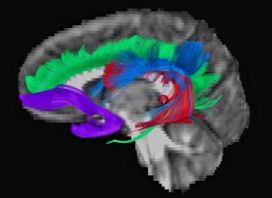 red-neuronal